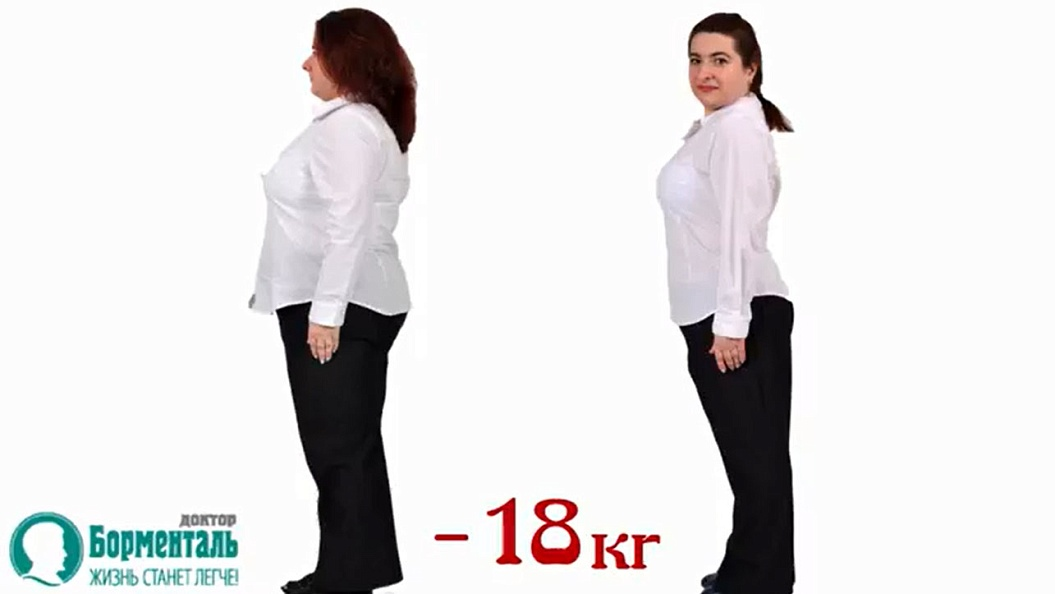 Центр похудения борменталь цена
